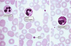 Blood Cells and Hematopoiesis - Slide #11 Answer