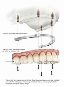Davis Advanced Dental Prosthetics