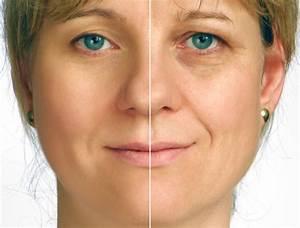 Перекись водорода от морщин на лице отзывы