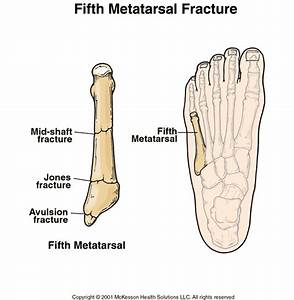 Sports Medicine Advisor 2003.1: Fifth Metatarsal Fracture ...