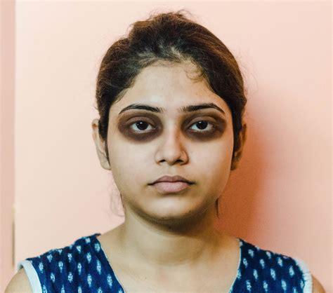 Makeup Tips For Dark Circles Under Eyes