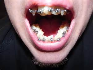 How Long Do You Wear Retainer After Braces