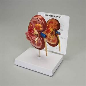 Human Kidney Pathology Model