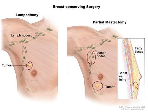 Male Breast Cancer Treatment Pdqpatient Version