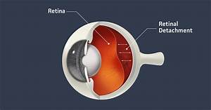 Detached Retina  Causes  Symptoms And Treatment