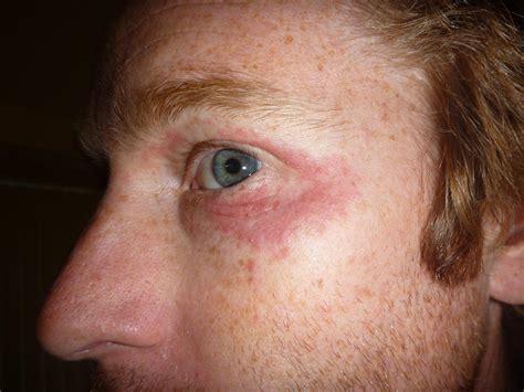 Seborrheic Dermatitis Dandruff Cradle Cap And Adult