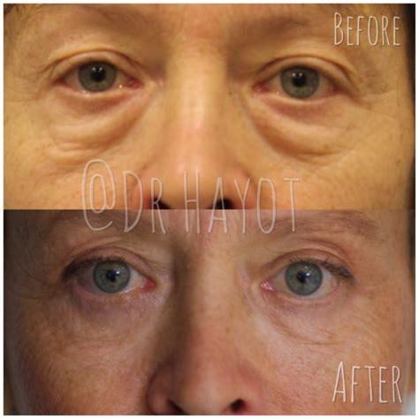 eyelid surgery epilium skin