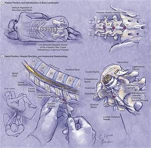How Do I Perform A Lumbar Puncture And Analyze The Results