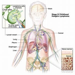 Stage Iv Childhood Hodgkin Lymphoma  Patient