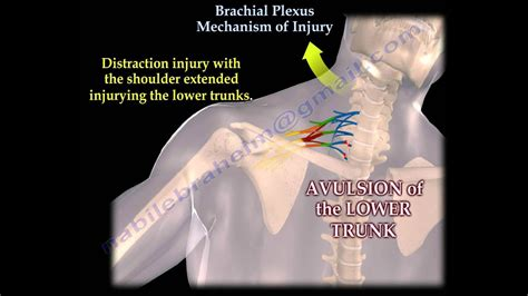 Brachial Plexus Mechanism Of Injury - Everything You Need
