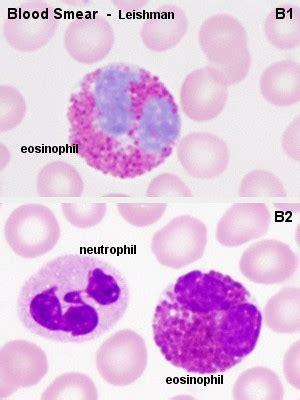 granulocytes granulocyte immature granulocytes
