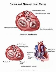 Medical School  U2022 Normal And Diseased Heart Valves