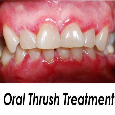 Best Home Remedies For Oral Thrush In Adults
