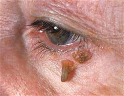 warts  face   remove moles warts skin
