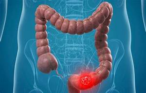 How To Identify Colon Cancer Signs And Prevention Of Colon