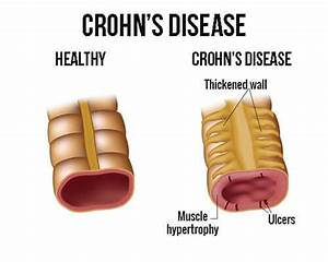 Crohn U0026 39 S Disease Treatment With The Right Diet