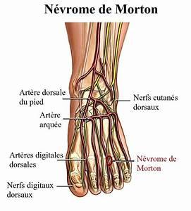 Crampes Au Pied : douleur aux nerfs du pied n vrome neuropathie diab tique et tunnel tarsien ~ Medecine-chirurgie-esthetiques.com Avis de Voitures