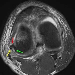 Medial Meniscus Tear MRI Axial