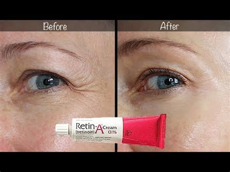 5-Year Retin-A Update ~ Before & After for Wrinkles & Anti