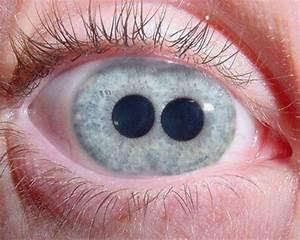 單眼單虹膜雙瞳孔和單眼雙虹膜雙瞳孔 - Get Jetso 著數優惠網