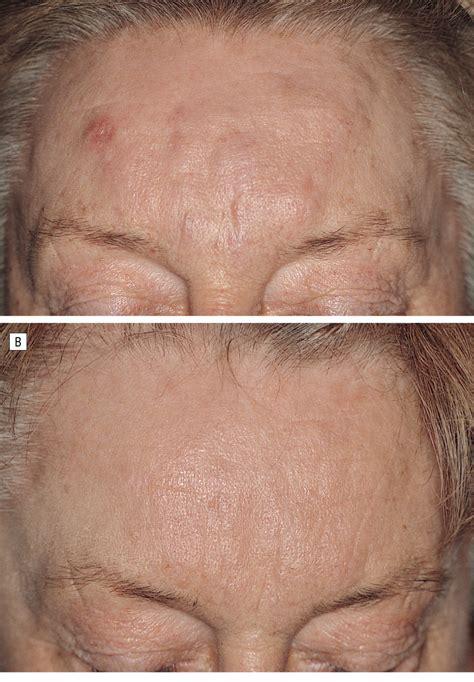 foreign body granulomas caused  polymethylmethacrylate