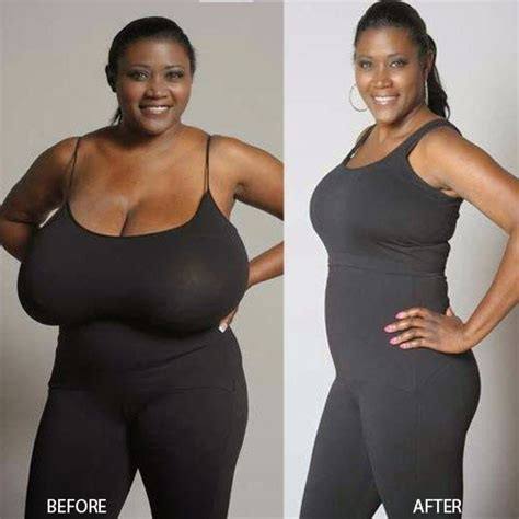 breast reduction surgery  dramatically change