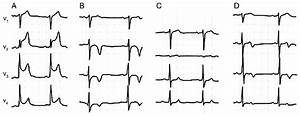 Four Consecutive Ecgs  Precordial Leads V1 To V4  Of A