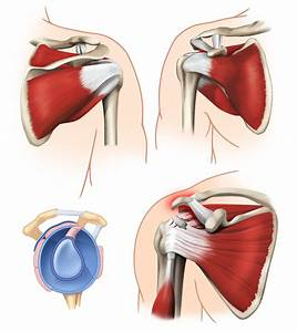 shoulder blade muscle pain