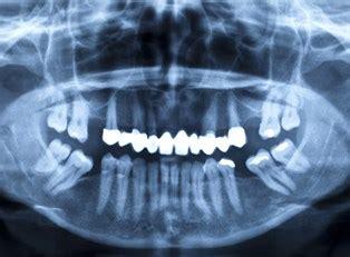pros  cons  dental implants