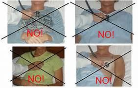 Pediatric Genital Exam...