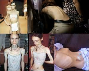 Pro Ana Anorexia Website