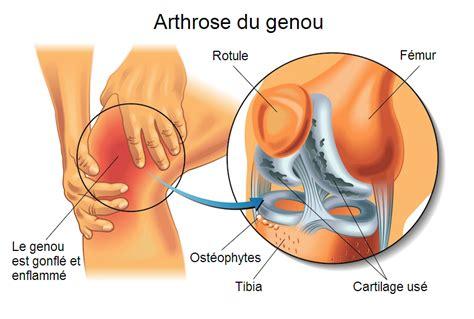 douleur al interieur du genou artrosi ginocchio physiotherapie pour tous