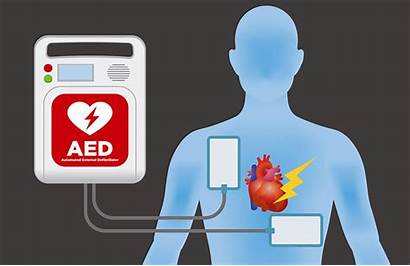 Aed Machine Defibrillator Pads Electrode External Automated