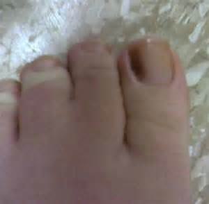 bruised toenail pictures healing time causes treatment