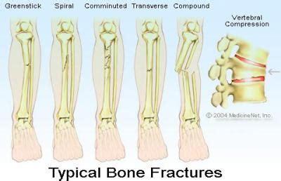 pediatric fracture care part   emory university studyblue