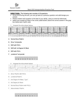 ecg form fill  printable fillable blank