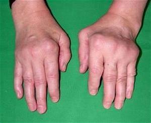 Моноклональные антитела препараты ревматоидный артрит