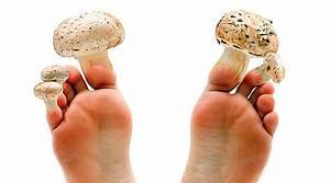 Грибок на ногтях ног лечение в домашних