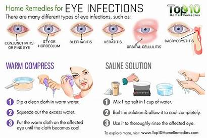 Eye Infection Infections Remedies Eyes Allergies Symptoms