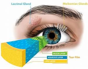 Aqueous Deficient Dry Eye