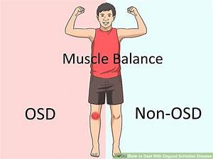 3 Ways To Deal With Osgood Schlatter Disease Wikihow