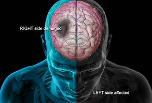 stroke is a medical emergency and Prompt Treatment is crucial. Early ...  Stroke Naturopathy