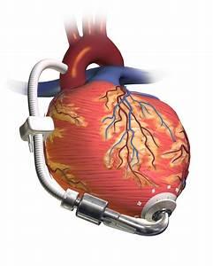Cardiac Pump | NASA