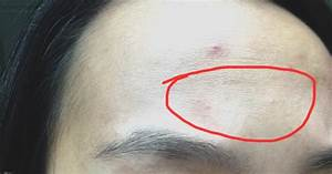 Sisters Who Love Beauty...: REVIEW: DRX Clinic Milia Removal