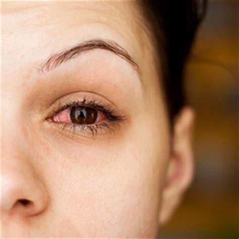 eye allergies   symptoms