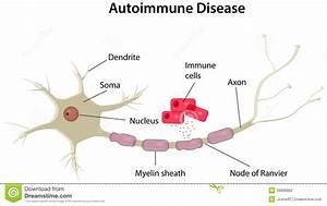 Autoimmune Disease Diagram Stock Vector  Image Of Death