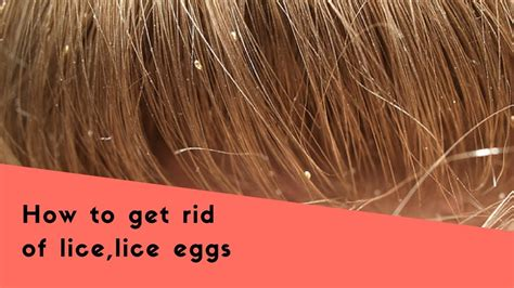Tips To Get Rid Of Lice Eggs|lice Eggs Removal Home