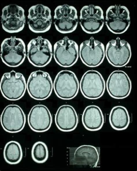 evidence  schizophrenia   brain disease schizophrenia