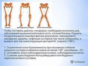 Резкие боли в коленном суставе при сгибании и разгибании как лечить