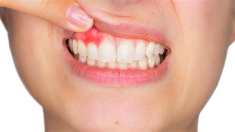 โรคเหงือกอักเสบ หรือ โรคปริทันต์ - SMILE GALLERY DENTAL CLINIC